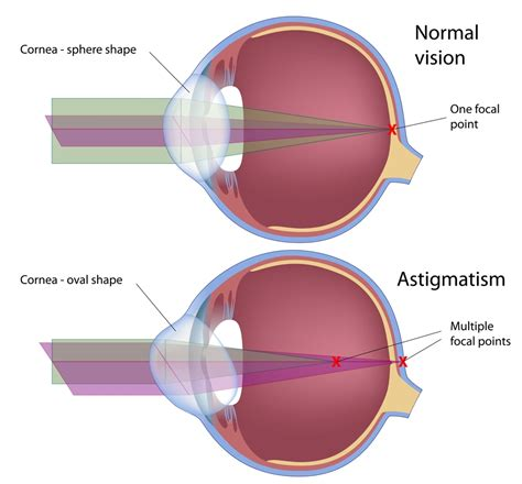 operation lasik astigmate astigmatism treatment correction lri toric lenses redding 448 | astigmatism