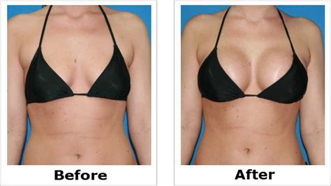 With The Breast Implants by Breast Implants Before And After Pictures Health 2 0