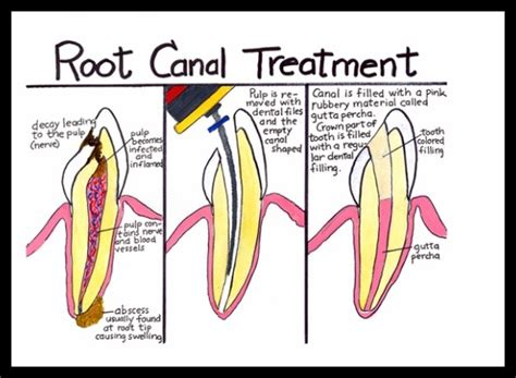 root canal diagram pin by cn dental on about teeth knowledge