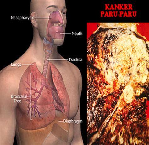 Obat Sakit Paru Paru Akibat Merokok obat kanker paru paru obat kanker paru paru herbal dari ace maxs efektif dalam mengobati