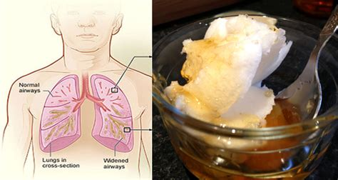 chest congestion relief 15 simple home remedies for chest congestion relief