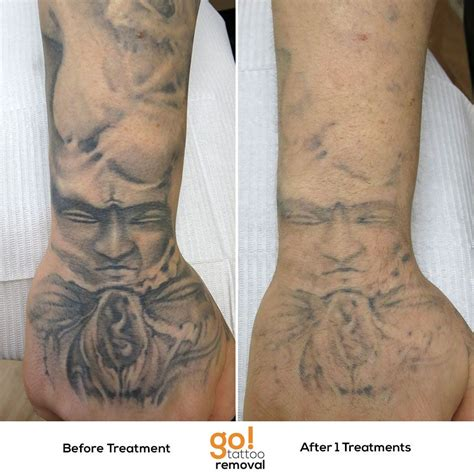 tattoos that can be removed this is the and lower forearm of a sleeve we re