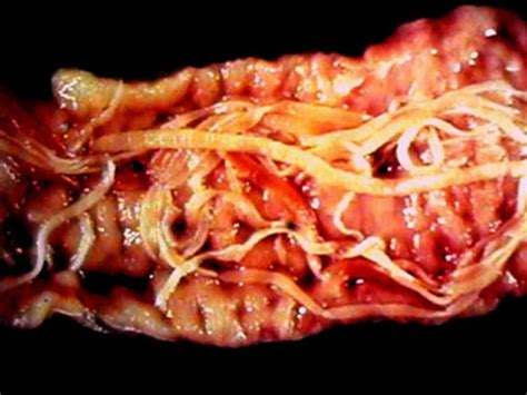 Tapeworm In Puppy Stool by Cyrus S Tapeworms In Cats