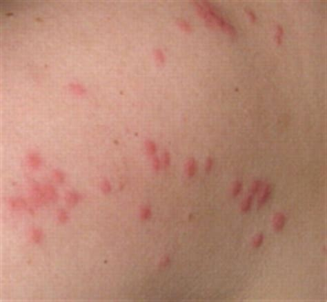 picture of bed bug bites on humans bed bug bites vs scabies learn the difference