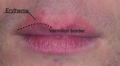 file erythema around the lips png wikimedia commons