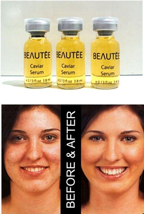 Serum Beautee Nano Scar By Nnc 3pcs 1 1 1 beautee serum caviar nano placenta