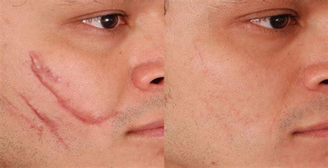 la cicatriz incre 237 bles remedios caseros para tratar y eliminar las cicatrices y marcas de ara 241 azos en la