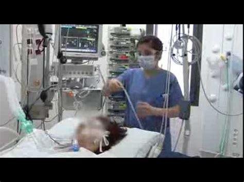 ventilator le ventilation m 233 canique en r 233 animation au chu de clermont