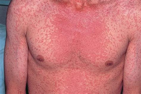measles is not just a rash