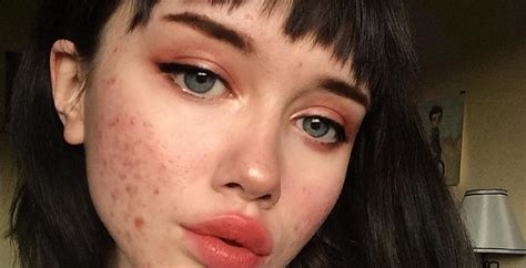 actress with acne teen shares viral acne message on instagram teen vogue