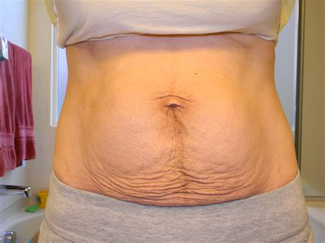 saggy tummy after c section flabby belly after c section get rid of the excess skin