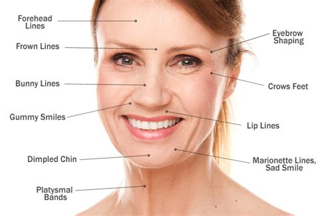 Where Your Wrinkle Filler Gets Injected Podcast by Chic Botox And Dermal Fillers