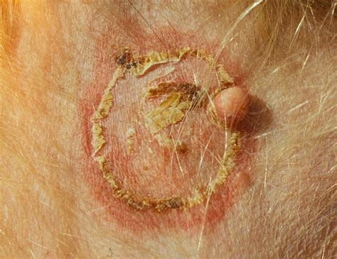 yeast infection on dogs skin skin yeast infection on dogs breeds picture