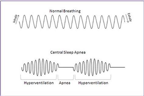 breathing pattern in heart failure sleep and heart health respicardia central sleep apnea