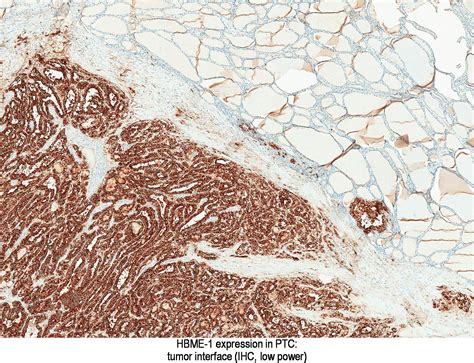 Melan A Stains Pathology Outlines by Pathology Outlines Hbme