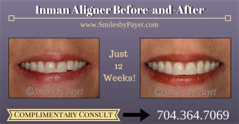 inman aligner charlotte nc braces cosmetic dentistry