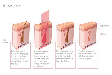 light therapy hair removal laser hair removal parfaire clinic