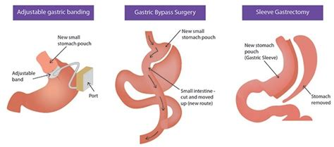 gastric bypass surgery diagram bariatric surgery abu dhabi weight loss obesity