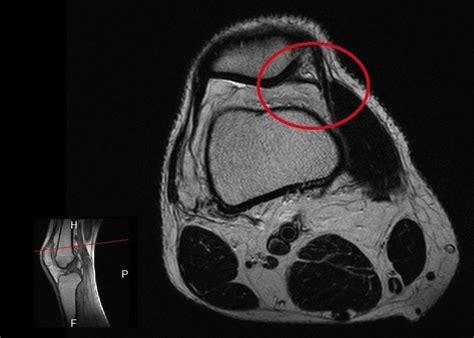dolore al lato interno ginocchio dolore al ginocchio interno esterno laterale cause