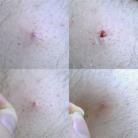 ingrown hair under the arm ingrown hair symptom treatment and prevention md