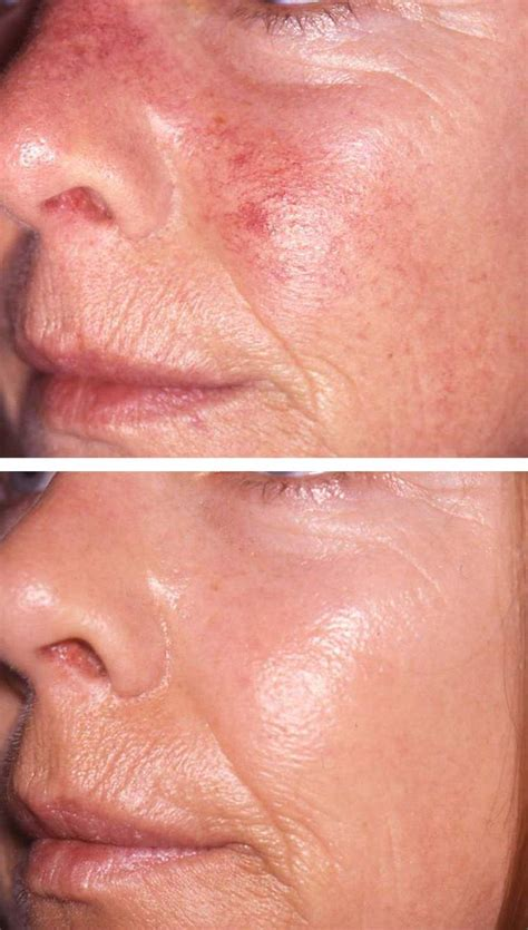 vascular laser amp ipl treatment 193 da aesthetic medicine
