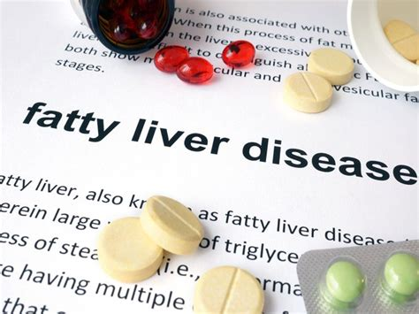 Liver Detox Webmd by 25 Best Ideas About Liver Disease On Fatty