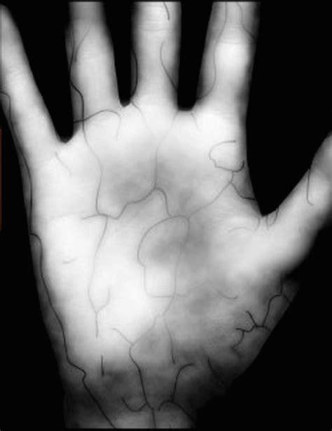 How biometric palm scans help keep hospitals secure - CBS News
