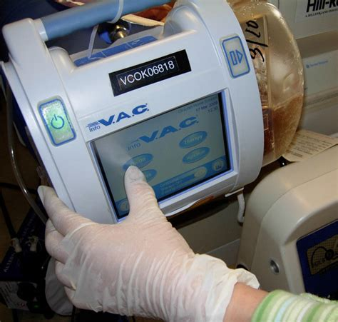Wound Vaccum wound vac in home health care professional home care services inc