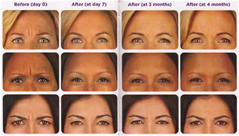 how long does botox last doctor answers tips realself botox maitland fl dermatologist