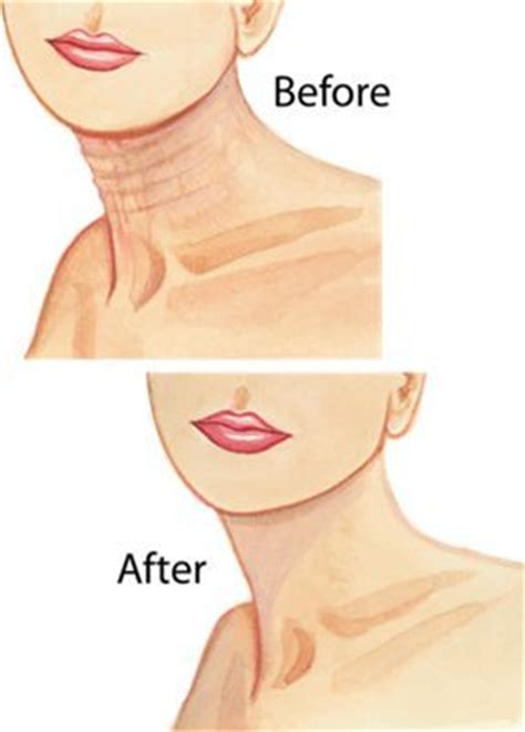best cream for sagging jawline firming cream sagging skin and spa offers on pinterest