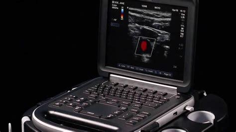 SonoSite Edge Product Training Part 1: Getting Started ... Ultrasound Machine Sonosite