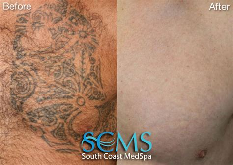 scars after tattoo removal my acne came back laser removal san diego remove