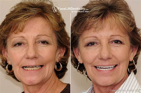 A Facelift For Your Teeth by No Surgery Bite Correction Reconstruction Lifts