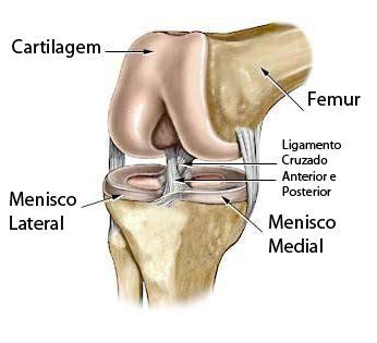 menisco interno saiba em que uma les 227 o no menisco pode afetar sua vida e