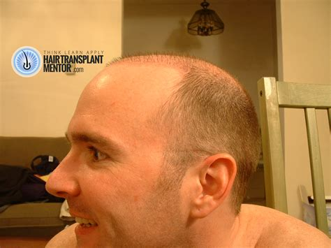 Correct Haircut Transplant | hair transplant haircut the surgical aftermath