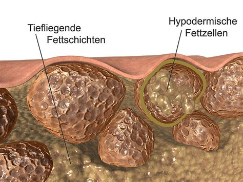 Cellulitis C Section by File Cellulitis Jpg