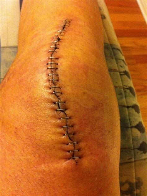 tattoo over knee surgery scar 5 days after surgery knee replacement scars