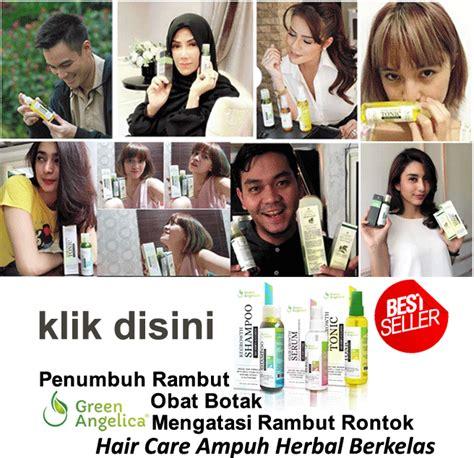 Merawat Dan Mencegah Rambut Anda Rontok Sho Green cara agar rambut cepat panjang dengan tomat 10 obat penumbuh rambut botak terbaik terbukti