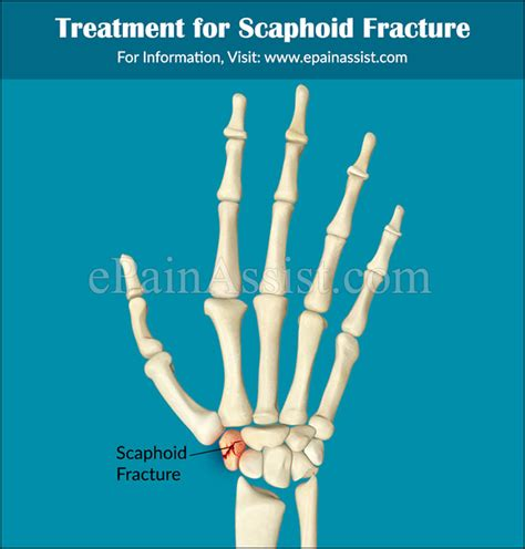 Scaphoid Fracture Types Causes Symptoms Treatment Physical ... Fractured Wrist Treatment
