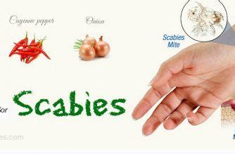 top 29 home remedies for scabies treatment in humans