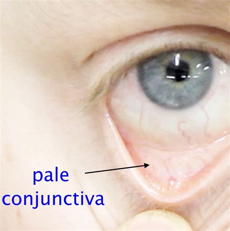 anemia skin color iron deficiency child health