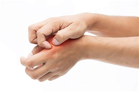 dermatite da allergia alimentare la dermatite da nichel si cura a tavola consigliati i test