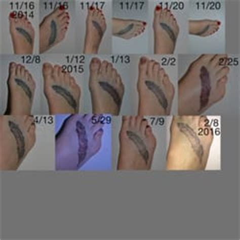 tattoo removal on foot project erase tattoo removal tattoo removal 1719 w
