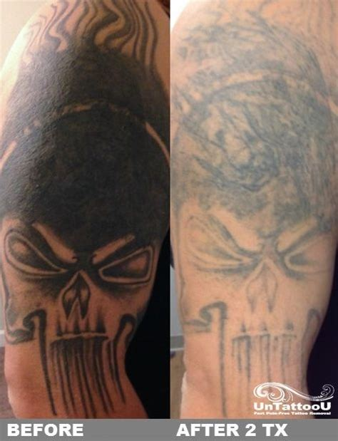 laser tattoo removal maryland untattoou laser removal before after 2