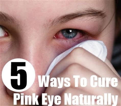 5 ways to cure pink eye naturally cure for pink