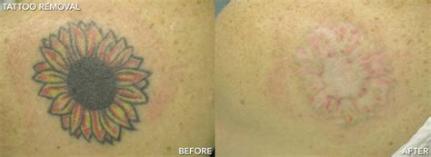 tattoo removal questions and answers laser tattoo removal lighttouch laser clinic