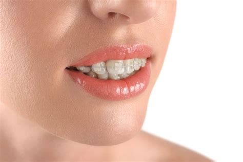 apparecchio mobile trasparente apparecchio dentale fisso o mobile trasparente clinica