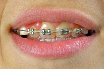 braces colors that make teeth whiter how to whiten teeth with braces howstuffworks