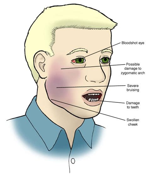 what are the causes and symptoms of jaw pain ehow jaw causes symptoms treatment jaw