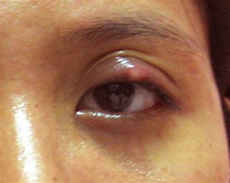 bump on s eyelid bump on eyelid symptoms causes treatment pictures